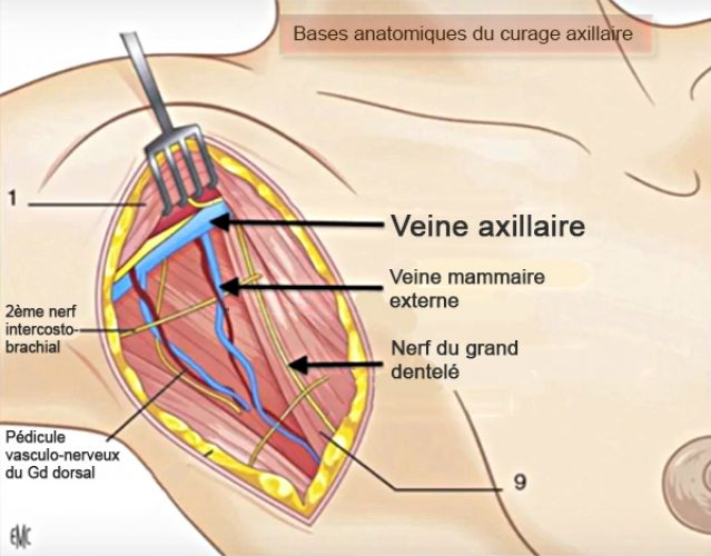 Curage axillaire_bases anatomiques